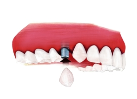 Quelle: Initiative proDente_Moderne Implantologie: Wie läuft eine Zahnimplantat-Behandlung ab?
