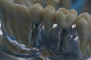 Quelle: Initiative proDente_Knochenaufbau für Zahnimplantate